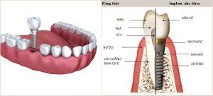 01-cay-ghep-implant-la-gi